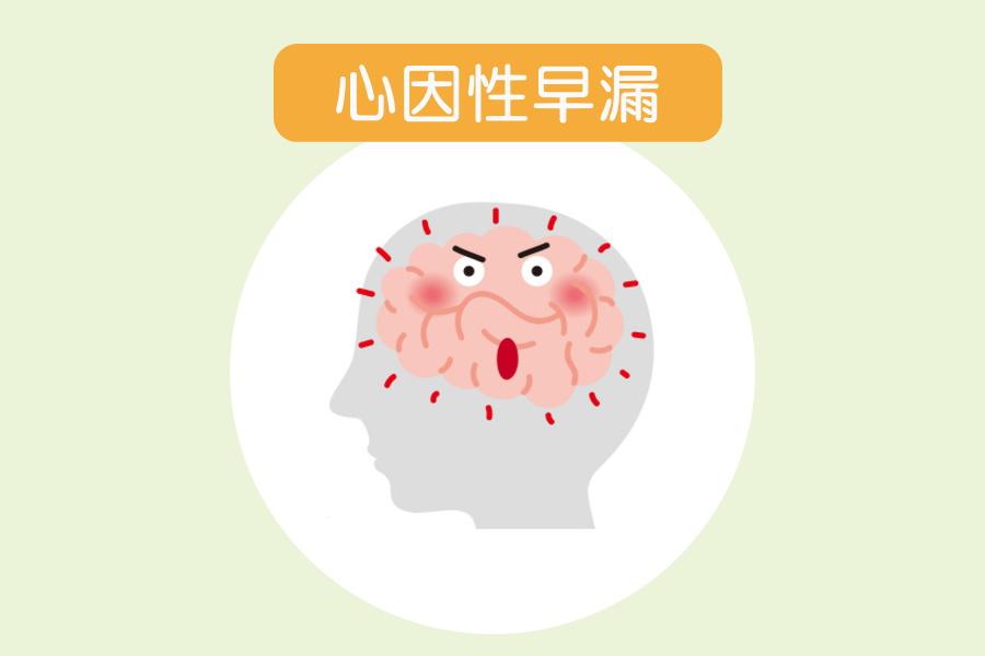 心因性早漏の原因と治療法【簡単・手軽に実践できる】